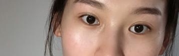去眼袋手术后纪实 | 做眼袋是一种怎样的体验?